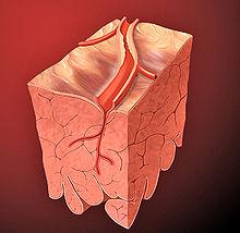 Lesão da artéria coronária