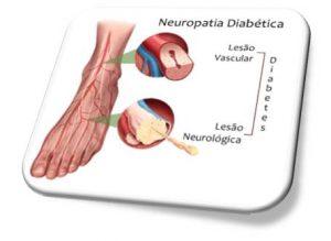Neuropatia Pé Diabético